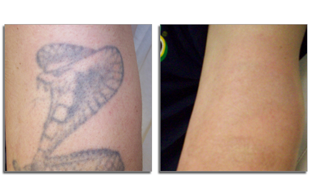Tattoo Removal Zeebody Graphics